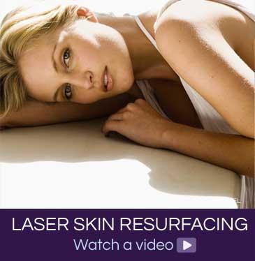 Laser Skin Resurfacing video