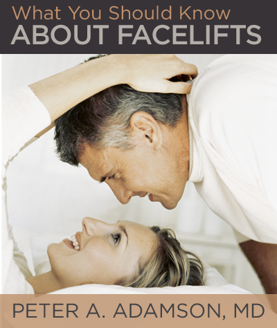 What to Know About Facelifts